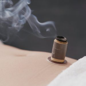 Chinese traditional medicine moxibustion therapy