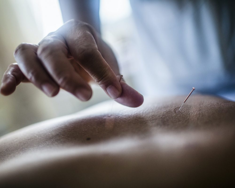 Close up of hand holding fine needle, performing acupuncture on a patient's back